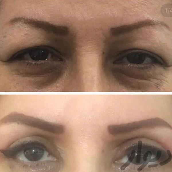 تزریق چربی و ژل توسط پزشک متخصص|آرایشگری و زیبایی|بهبهان|دیوار