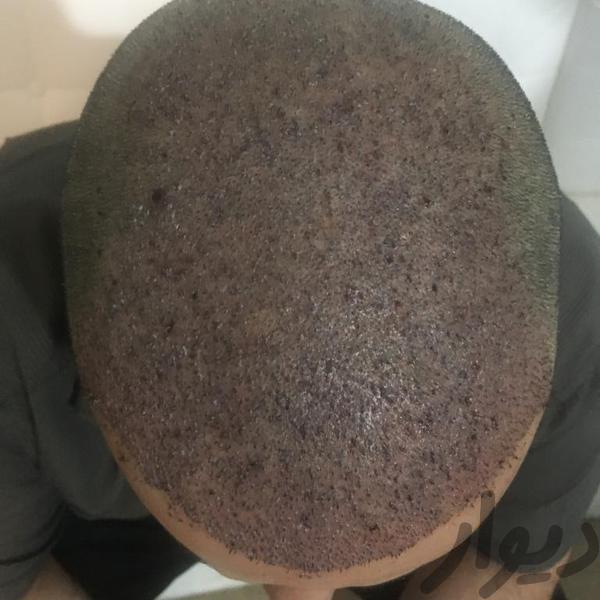 کاشت مو با لیزر 2019 بدون جراحی|آرایشگری و زیبایی|تهران، تجریش|دیوار