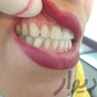 دندانسازی،دندان،دندان مصنوعی،دندان سازی
